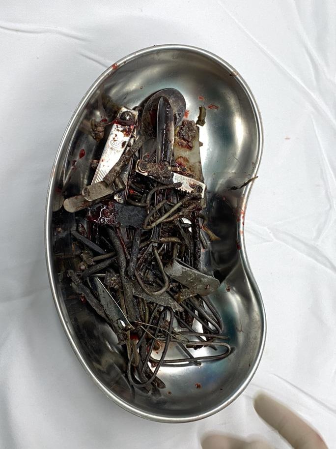 Người đàn ông có sở thích lạ ăn cả ký sắt thép đinh, kéo - Ảnh 2.
