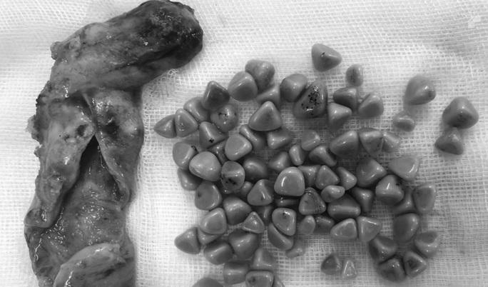 Ớn lạnh túi đá chứa hàng trăm chiếc răng người trong bụng 1 phụ nữ - Ảnh 1.