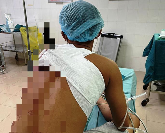 Sau hỗn chiến, nam thanh niên đến bệnh viện với cây dao đâm vào lưng - Ảnh 1.