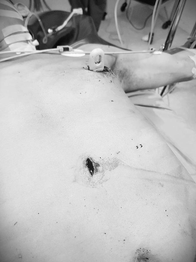 Cứu sống bệnh nhân bị đâm lút cán dao, làm thủng tim, gan - Ảnh 1.