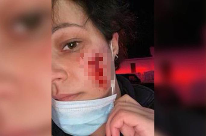 Từ vết cắn đáng sợ trên mặt nữ nhân viên y tế Mỹ - Ảnh 1.