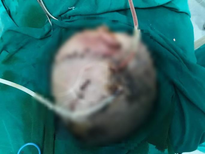 Bé trai hơn 4 tuổi bị chó nhà cắn tổn thương nặng vùng đầu - Ảnh 1.