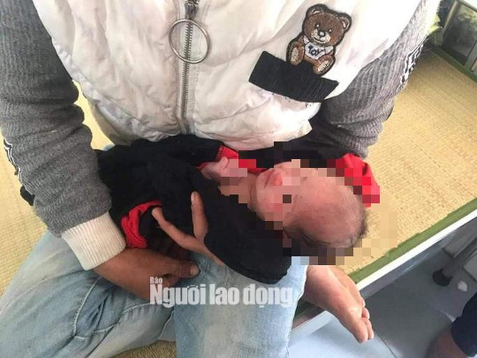 Bé gái sơ sinh 2 ngày tuổi bị bỏ rơi giữa vườn tràm - Ảnh 1.