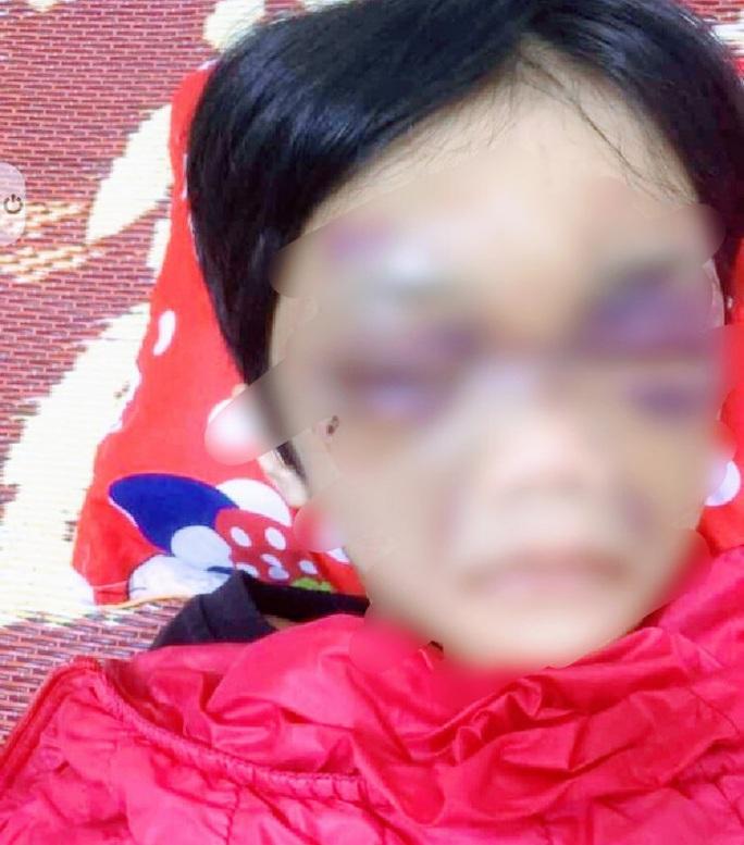 Mẹ đẻ bạo hành con gái 6 tuổi thâm tím mặt mày, nhốt trong phòng trọ - Ảnh 1.