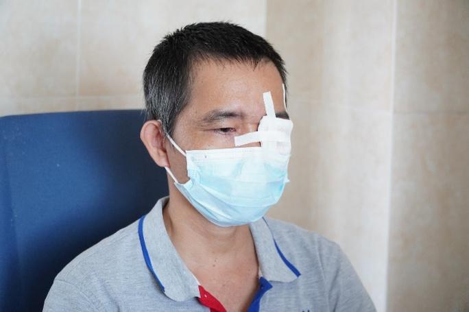 Người đàn ông suýt mù mắt vì vòi xịt nước cao áp - Ảnh 2.