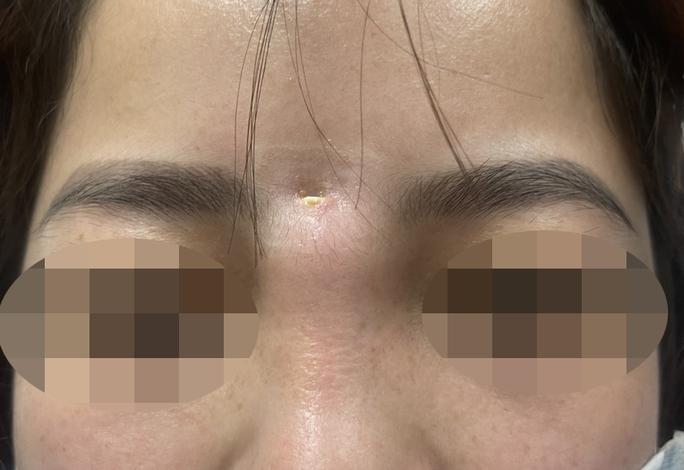 Người phụ nữ bị mọc sừng ra trán sau nâng mũi làm đẹp - Ảnh 1.