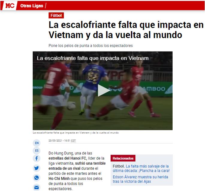 Báo chí quốc tế ám ảnh cảnh gãy chân ghê rợn của Đỗ Hùng Dũng - Ảnh 1.