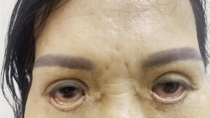 Ám ảnh đôi mắt của người phụ nữ đến từ Bình Dương - Ảnh 1.