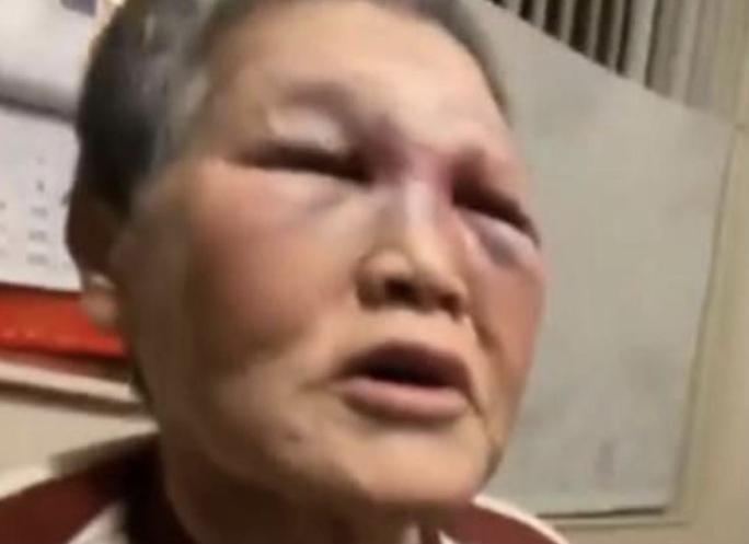 Bị hành hung tại Mỹ, cụ bà quyên góp 1 triệu USD chống phân biệt - Ảnh 1.