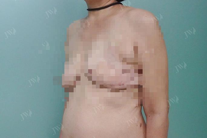 Tin vui cho bệnh nhân bị cắt tuyến vú - Ảnh 1.