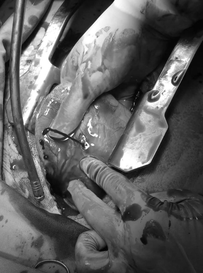 Mổ xuyên đêm cứu sống thanh niên bị thủng tim, 3 lần ngưng tim - Ảnh 2.