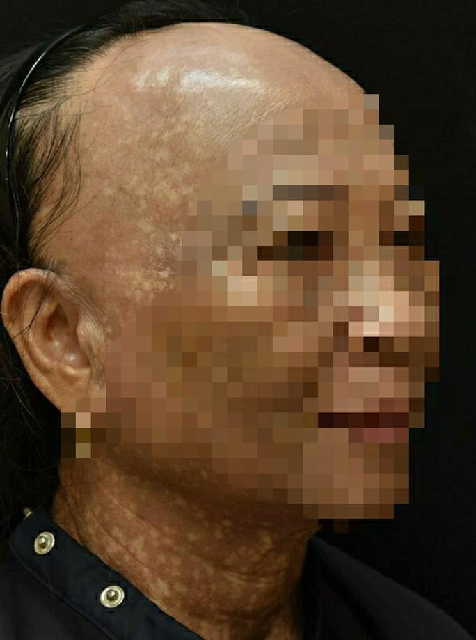 Người phụ nữ mắc bệnh hiếm gặp, đột nhiên rụng tóc, sạm da - Ảnh 2.