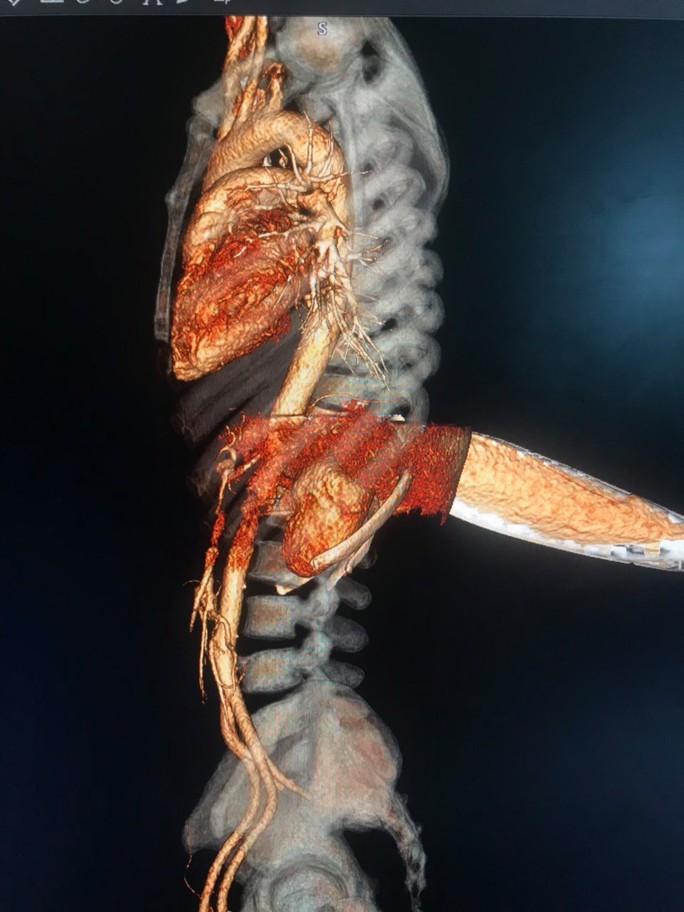 Nghẹt thở với ca bệnh dao thọc huyết cắm trên lưng - Ảnh 1.