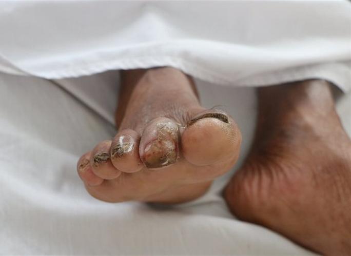 Người đàn ông sốt, ho, khó thở suốt 2 tháng nhiễm vi khuẩn ăn thịt người - Ảnh 1.