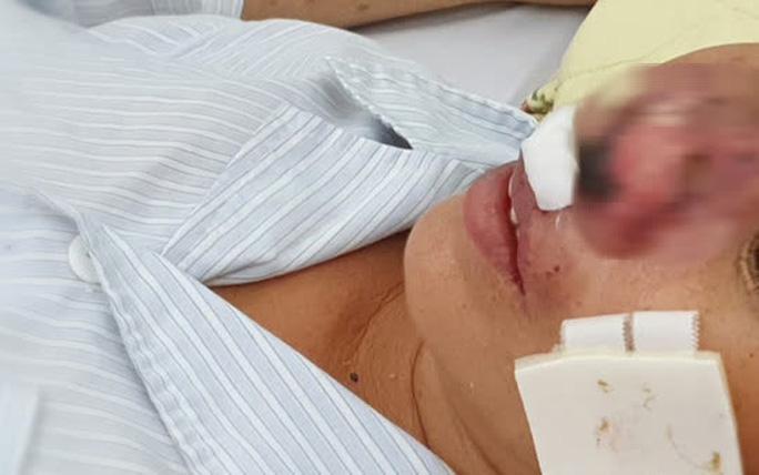 Người đàn ông sốt, ho, khó thở suốt 2 tháng nhiễm vi khuẩn ăn thịt người - Ảnh 2.