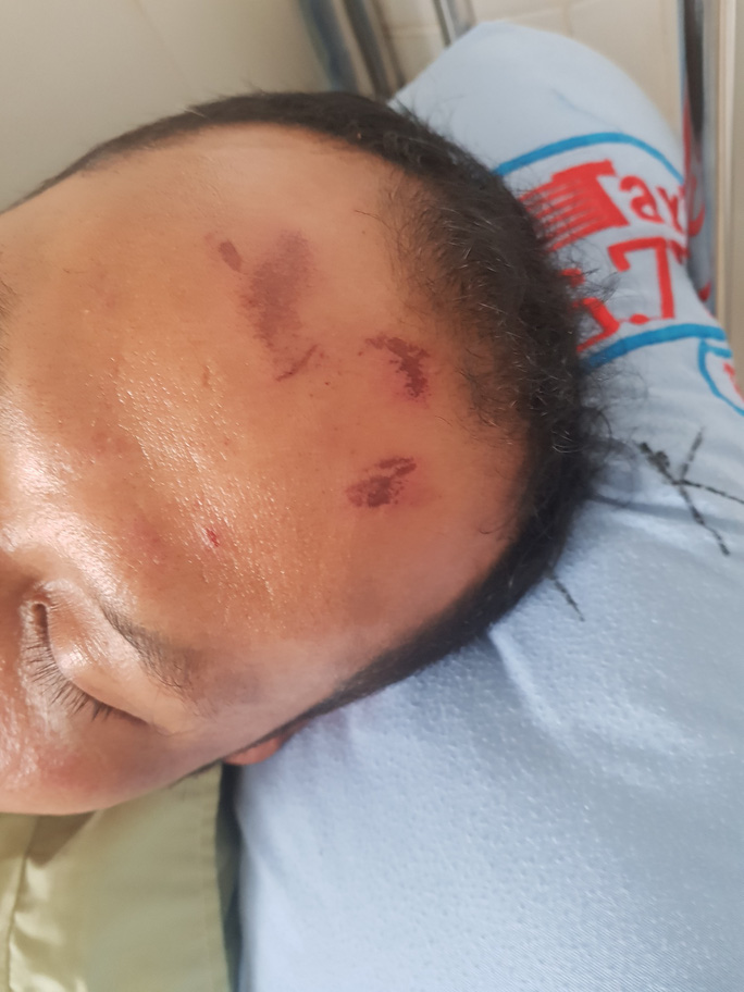 Clip: Một người bị nhiều người đánh ngay trung tâm huyện Lâm Hà - Ảnh 2.