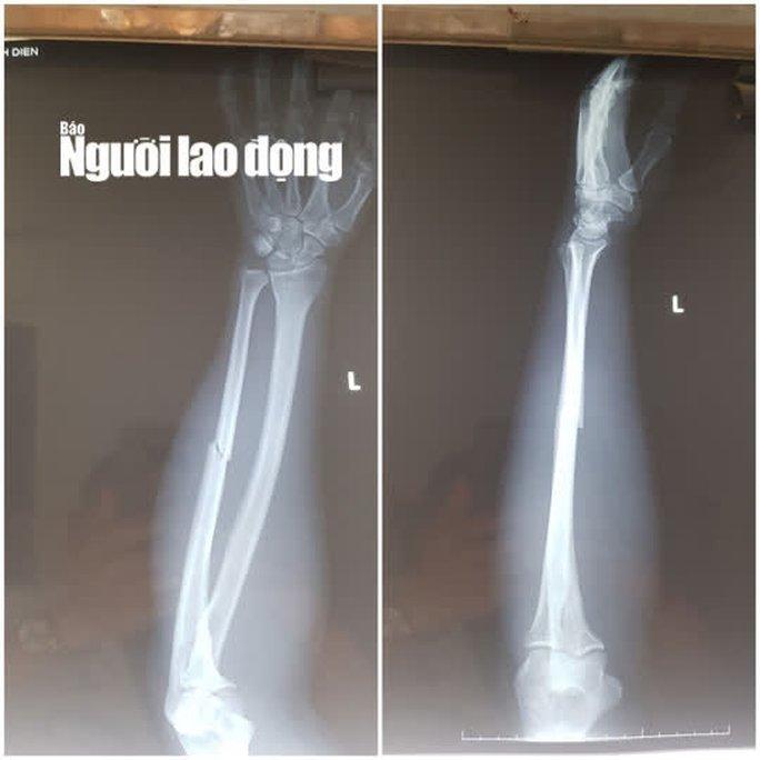 Chân dung 6 bảo vệ resort đánh trọng thương 2 người ở Phú Quốc - Ảnh 3.