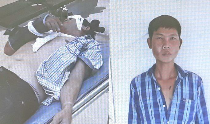 Sự thật vụ 2 người bị nhóm lạ mặt đánh đập dã man giữa khuya - Ảnh 1.