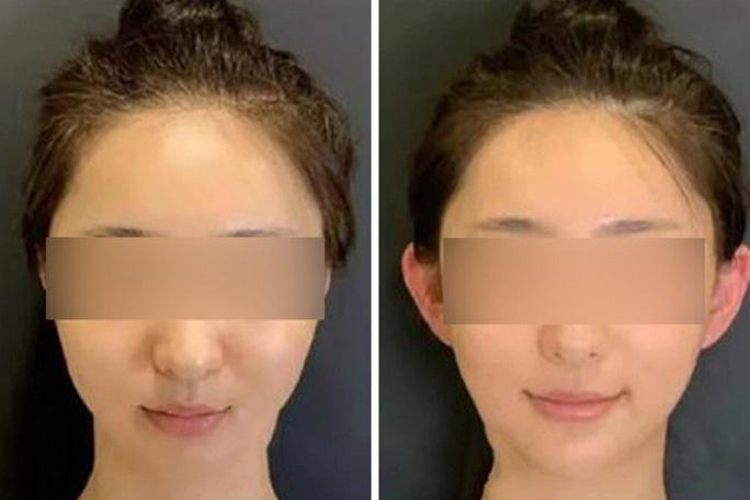 Mốt phẫu thuật thẩm mỹ tai yêu tinh bùng nổ ở Trung Quốc - Ảnh 1.
