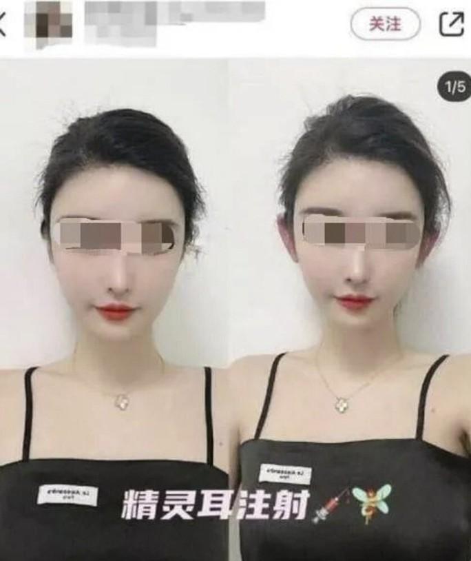 Mốt phẫu thuật thẩm mỹ tai yêu tinh bùng nổ ở Trung Quốc - Ảnh 2.