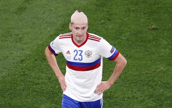 Vỡ xương hốc mắt, sao tuyển Bỉ chia tay Euro 2020 - Ảnh 5.