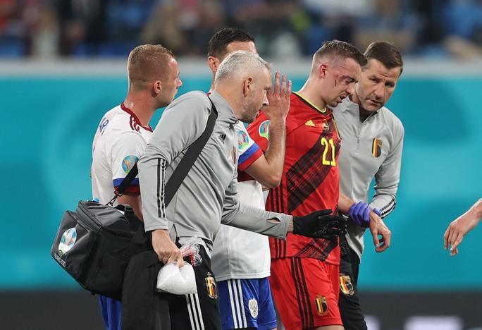 Vỡ xương hốc mắt, sao tuyển Bỉ chia tay Euro 2020 - Ảnh 3.
