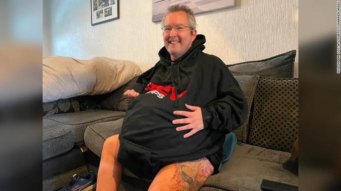 Người đàn ông sở hữu quả thận nặng... 40 kg - Ảnh 1.