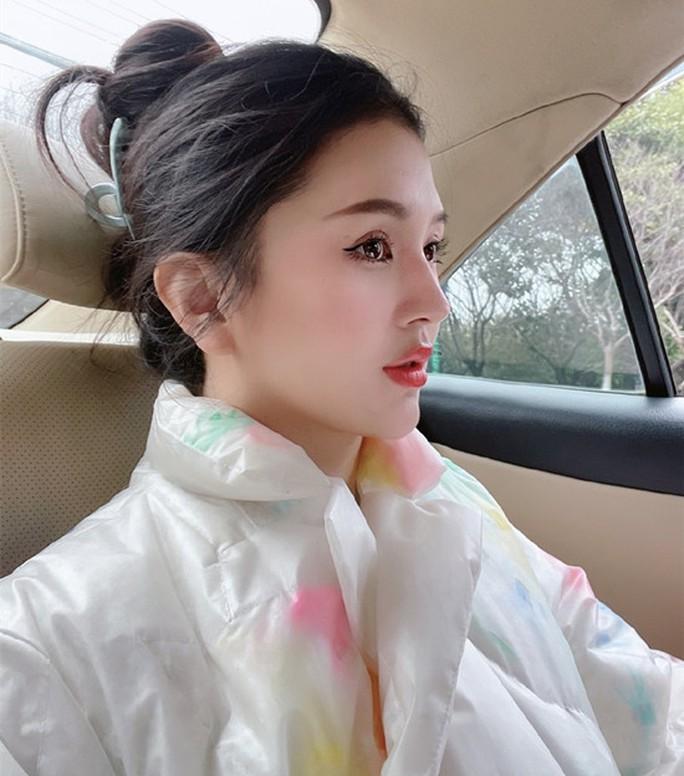 Người mẫu Trung Quốc tử vong sau khi nâng ngực, hút mỡ bị biến chứng - Ảnh 1.
