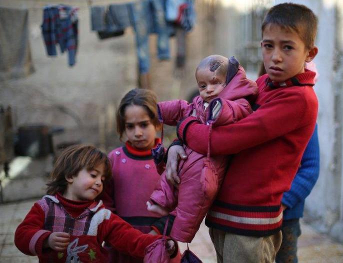 Syria: Xót thương bé 3 tháng tuổi chỉ còn một mắt - Ảnh 5.