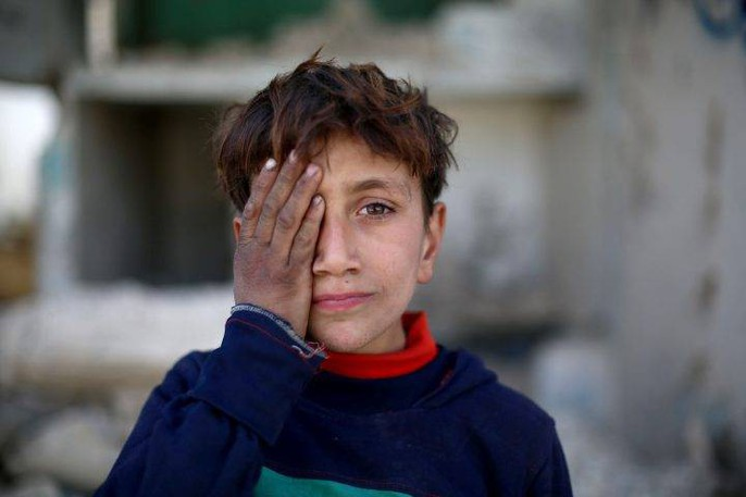 Syria: Xót thương bé 3 tháng tuổi chỉ còn một mắt - Ảnh 8.
