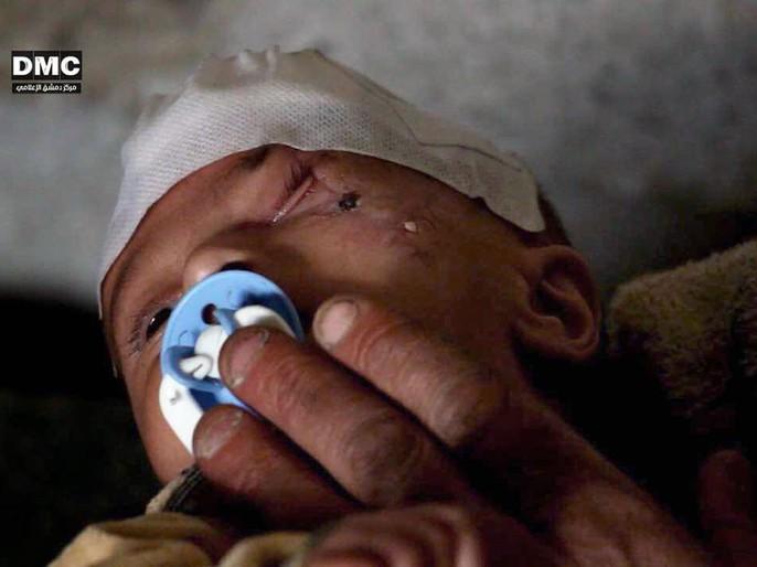 Syria: Xót thương bé 3 tháng tuổi chỉ còn một mắt - Ảnh 6.