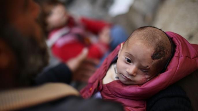 Syria: Xót thương bé 3 tháng tuổi chỉ còn một mắt - Ảnh 1.