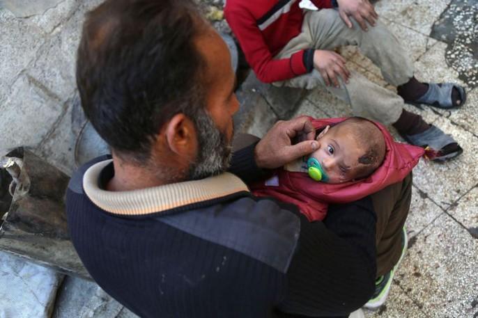 Syria: Xót thương bé 3 tháng tuổi chỉ còn một mắt - Ảnh 4.