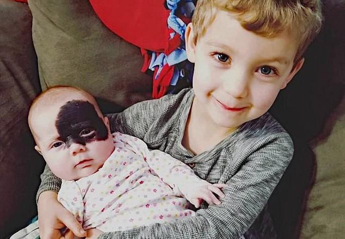 Bé gái ra đời với mặt nạ Batman trên mặt - Ảnh 1.