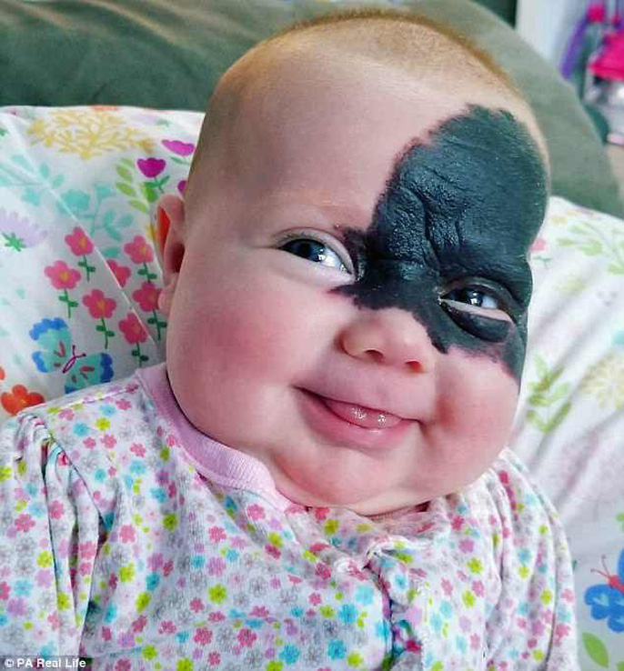 Bé gái ra đời với mặt nạ Batman trên mặt - Ảnh 2.
