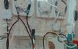 90 giờ lọc máu liên tục cứu sống sản phụ cận kề cái chết