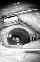 Bác sĩ rùng mình rút chiếc đinh uốn cong trong  cắt mí mắtbệnh nhân