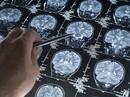 Cholesterol xấu - kẻ thù của trí nhớ