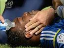 Nứt đốt sống cổ, thủ môn tuyển Pháp bỏ World Cup 2014