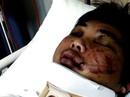 Úc từ chối cấp mới visa cho du học sinh Việt bị tấn công