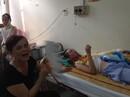 TP HCM: Tân cử nhân bỏng nặng trong ngày nhận bằng tốt nghiệp