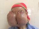Cắt bỏ 2 khối u khổng lồ trên mặt 1 bệnh nhân