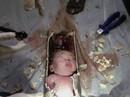Làm rõ vụ trẻ sơ sinh chết với vết đứt sâu ở cổ