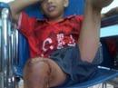 Bắt chước IS, một bé trai 10 tuổi suýt bị đốt chết trong lồng
