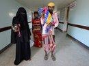 Hình ảnh tàn khốc trong cuộc chiến ở Yemen