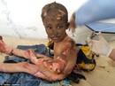 Chấn động em bé Napalm Syria
