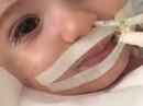 Bệnh nhân nhí bật tỉnh kỳ diệu sau khi bác sĩ sắp sửa rút ổng thở