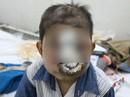 """Bé trai mất mạng vì bệnh """"lạ"""" ăn mòn khuôn mặt"""