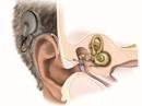 Thoát cảnh câm, điếc nhờ ốc tai điện tử