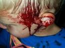 Rắn bò vào nhà cắn đầu bé trai đang ngủ